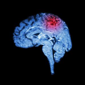 mri-brain-stroke.jpg