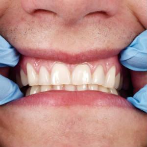 oral-health.jpg