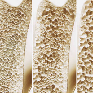 osteoporosis-risk