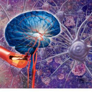 vascular-demetia