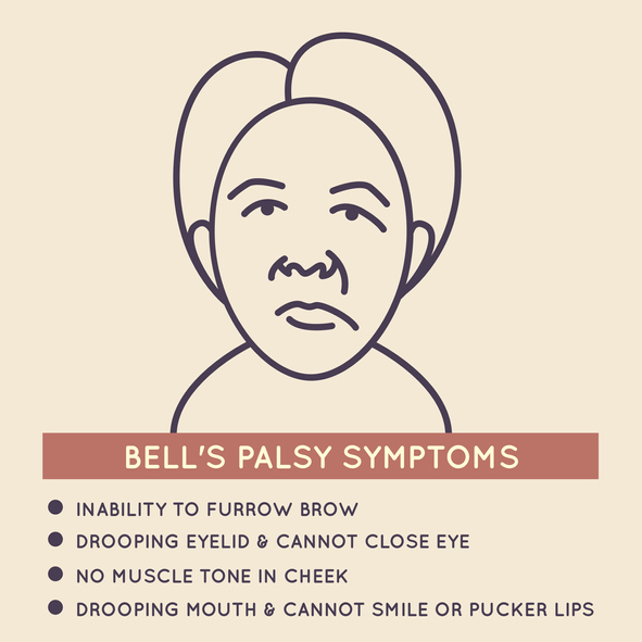 Bell S Palsy Versus Stroke What To Know