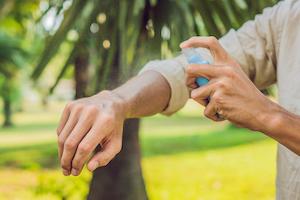 treating-bug-bites
